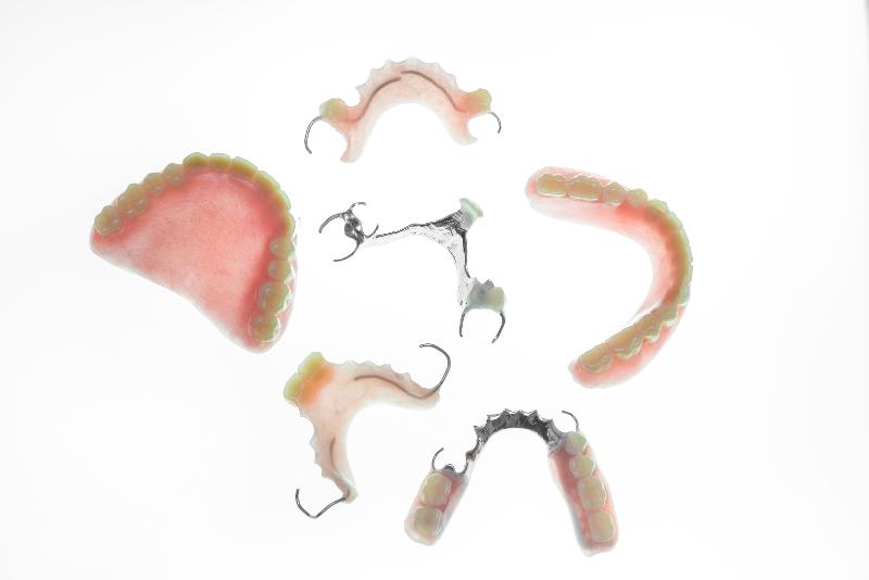 インプラント・ブリッジ・義歯の違い